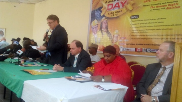 The International Albinism Awareness Day Celebrations 2015