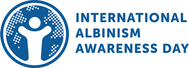 National/ International Albinism Awareness Day