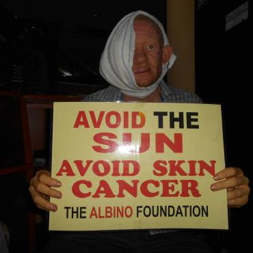 REPORT OF THE APPROVAL OF DECENTRALISATION OF SKIN CANCER TREATMENT FOR PERSONS WITH ALBINISM TO SIX FEDERAL TEACHING HOSPITALS ACROSS THE SIX GEOPOLITICAL ZONES OF THE COUNTRY BY NATIONAL COUNCIL ON HEALTH